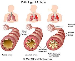 анатомия, астма