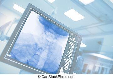 больница, monitoring, компьютер, cathlab