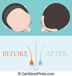 волосы, до, после, плешивый, человек, лечение