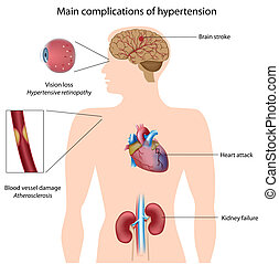 гипертония, complications, eps8