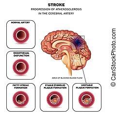 головной мозг, инсульт, артерия