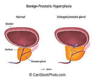 fibrózis Mi a prostatitis
