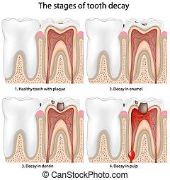зуб, распад