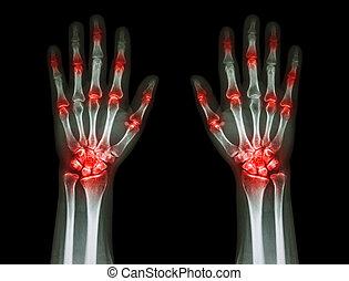 и то и другое, множественный, подагра, ), (, артрит, совместный, черный, задний план, руки, ревматоидный