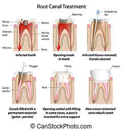 канал, лечение, корень, eps8