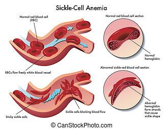 клетка, серп, анемия