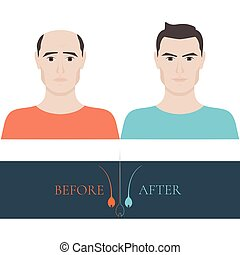 потеря, волосы, до, после, лечение