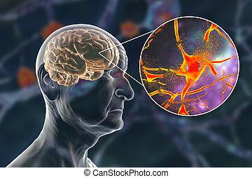 потеря, illustration., alzheimer's, память, слабоумие, концепция, старение, медицинская, головной мозг, болезнь, 3d