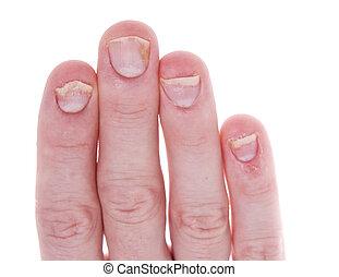 псориаз, fingernails, белый, isolated, задний план