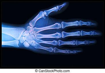 рентгеновский, рука, fingers