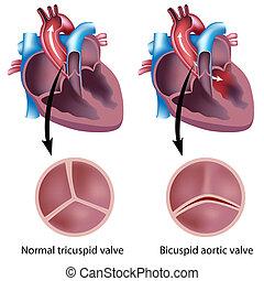 сердце, дефект, клапан, eps8