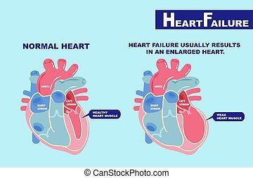 сердце, концепция, недостаточность