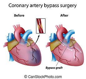сердце, хирургия, байпас, eps8