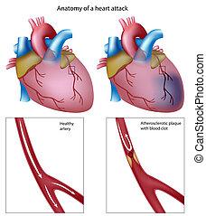 сердце, eps8, атака