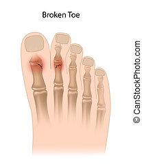 сломанный, палец, eps10