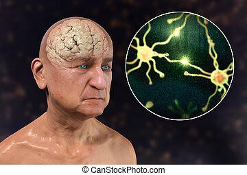 alzheimer's, слабоумие, концепция, медицинская, болезнь, 3d, иллюстрация
