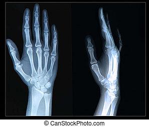 fingers, hand/, xray