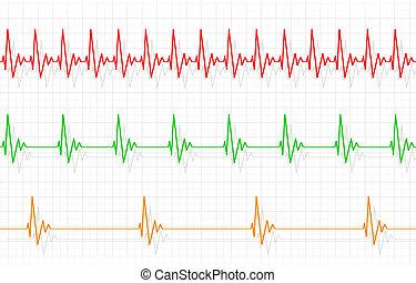 heartbeats, другой, иллюстрация